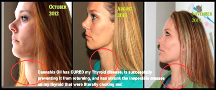 cannabis_thyroid_lindsay_n