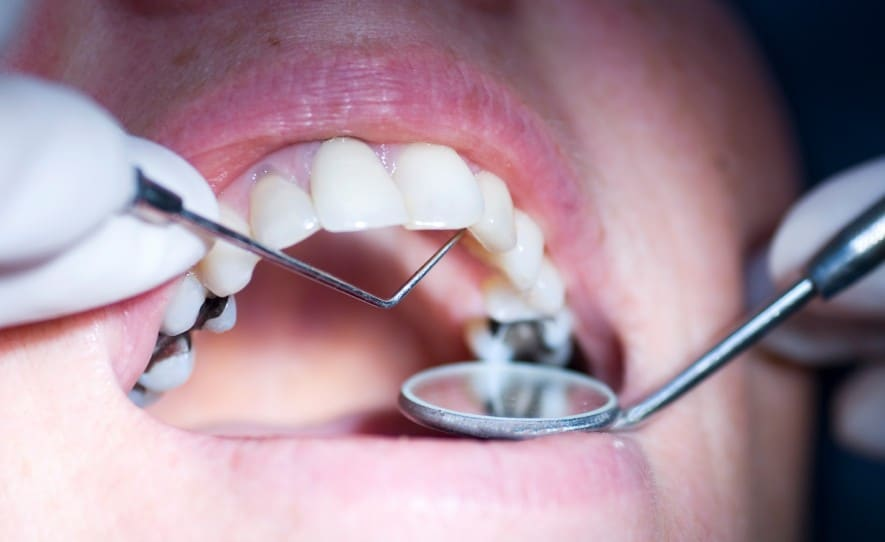 wisdom removing how teeth long does after bleeding last